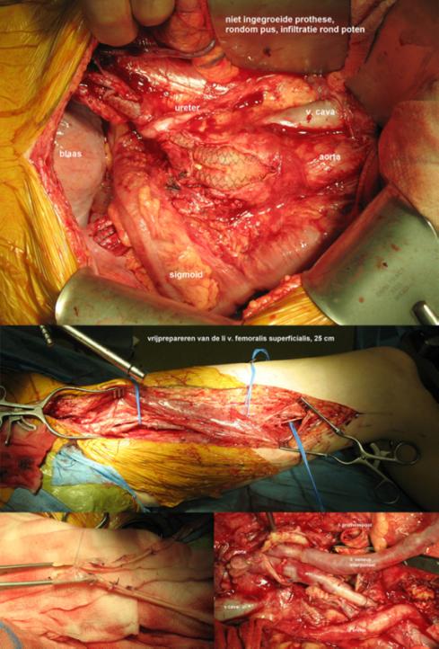 enkel prothese operatie